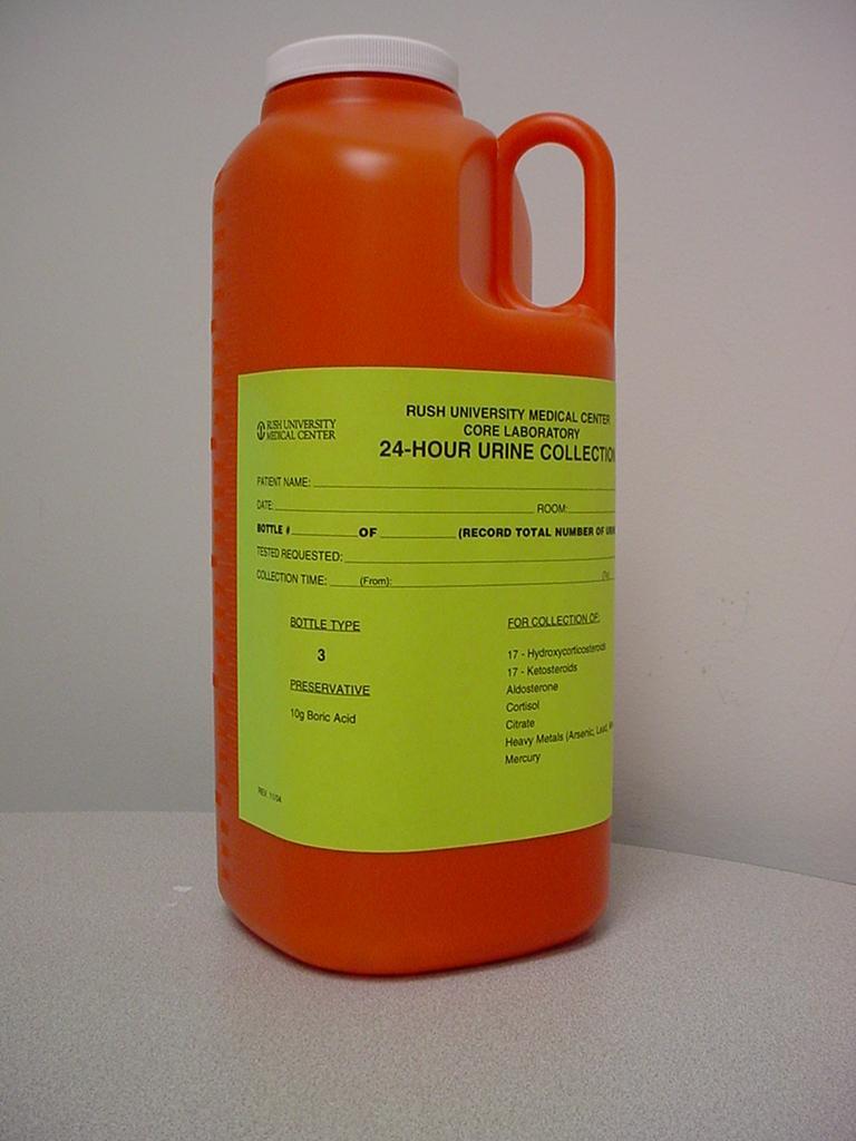 17-ketosteroids urine test