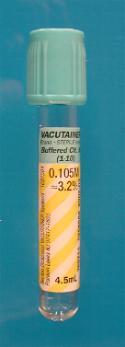 17 ketosteroids urine